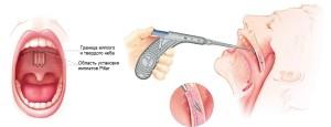 Nebnyie-implantyi-Pillar